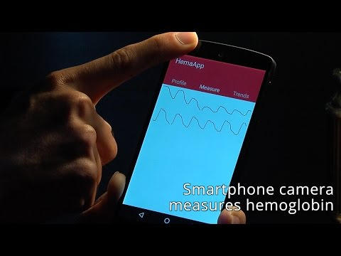 Google buys startup that turns smartphones into health diagnostic tools