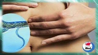 Remedios caseros y naturales para eliminar parasitos intestinales