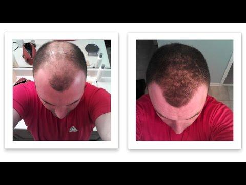 Ответы@:.или зоб(увеличение щитовидки) на выпадения волос. ••• может ли влиять миома матки или зоб(увеличение