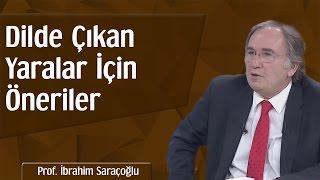 Dilde Çıkan Yaralar İçin Öneriler | Prof. İbrahim Saraçoğlu