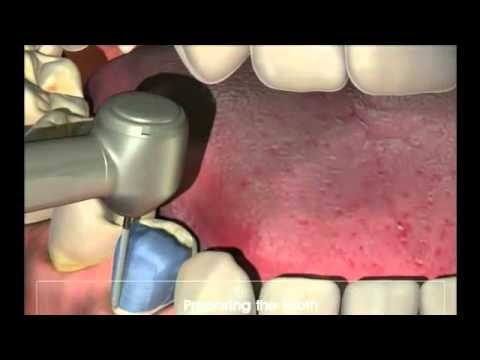 Crowns - Procedure for your new crown at Dental Reflections