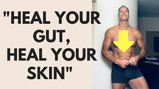 Dr. Shawn Baker: What to eat to heal your GUT, SKIN AND AUTOIMMUNE DISEASE