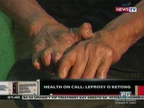 OC: Health On Call: Leprosy o Ketong