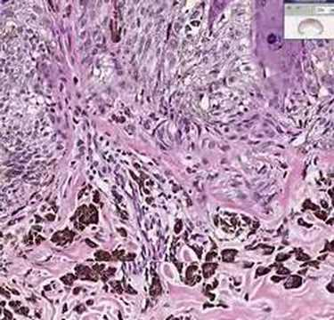 Histopathology Skin--Pigmented Spindle Cell Nevus