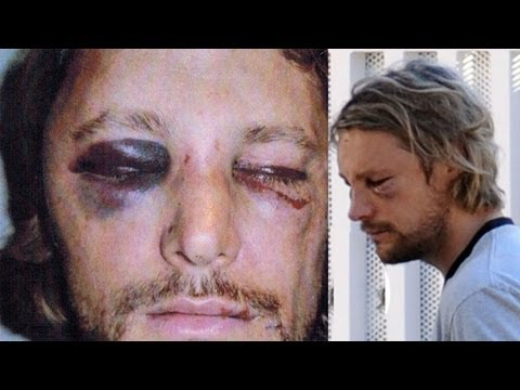 Halle Berry's Ex Gabriel Aubry Beaten Up