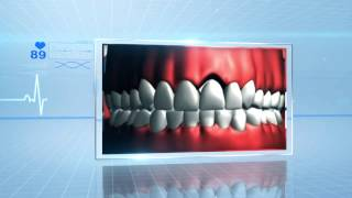 Tooth Loss: Why Dental Implant?