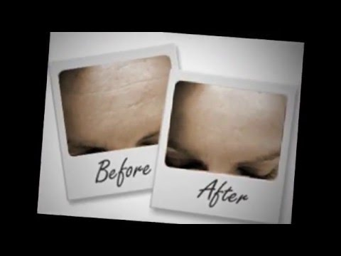 0 Eliminate Lines and Wrinkles With Skinlastin Anti Aging Cream