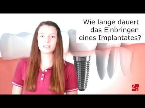 Implantate FAQ #01 Was ist eigentlich ein Zahnimplantat? Was kostet ein Implantat?