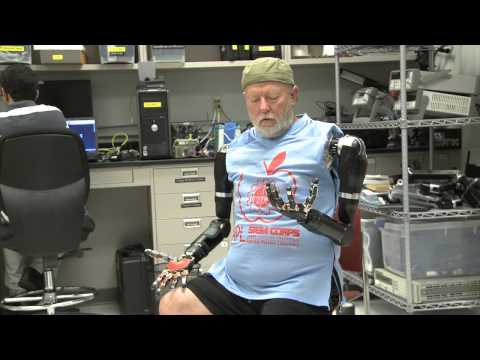 Amputee Makes History with APL's Modular Prosthetic Limb