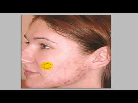How To Remove Spots / Blemishes / Acne Photoshop CS5