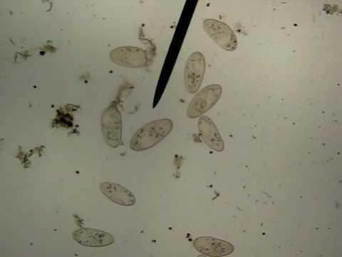 paramecium at 40x - YouTube