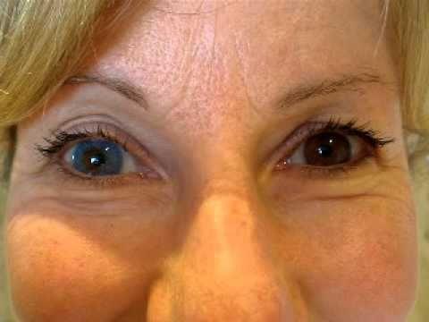 Sapphire Blue Freshlook Lens On Brown Eye Buy Now At Www