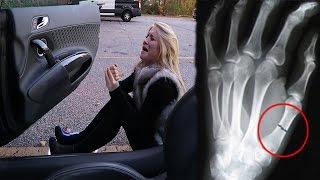 SHE FELL OUT OF MY CAR AND BROKE HER THUMB!