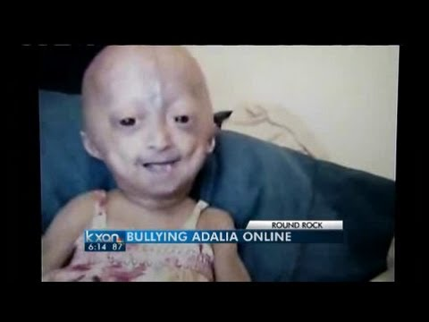 Cyber Bullying Of Child With Rare Disease video