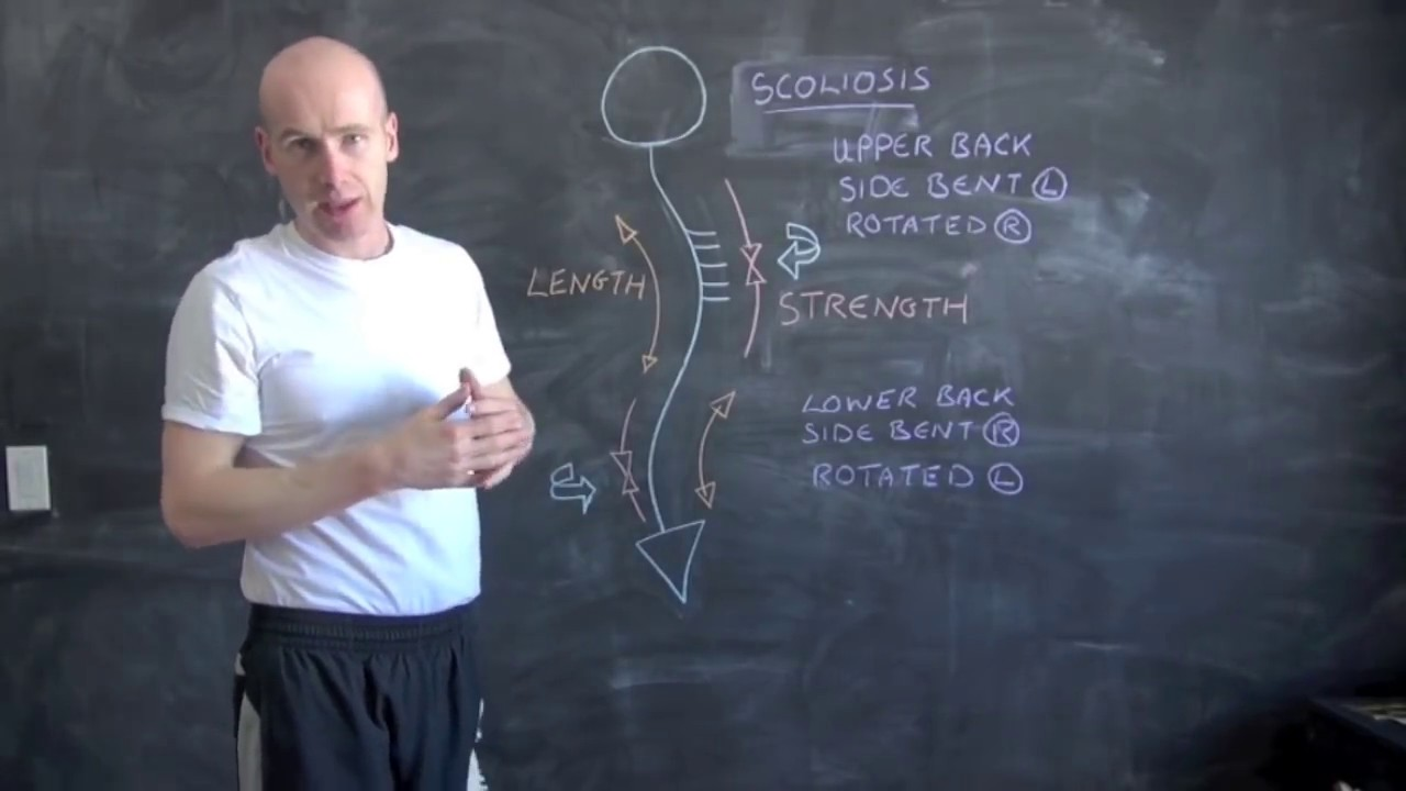 How to Correct a Scoliosis With Exercise and Stretching ...