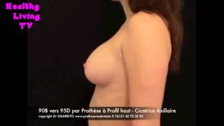 共立美容外科・歯科の豊胸術 Fast Breast Augmentation Plastic surgery video   2013