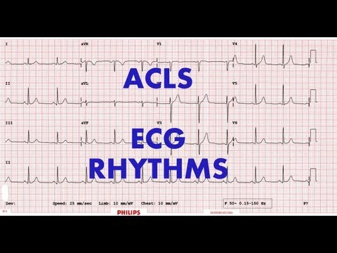 ACLS - ECG rhythm recognition & management. Part 1