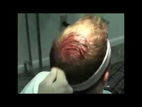 Dr Joseph Greco Using Prp Therapy For Hair Loss Youtube