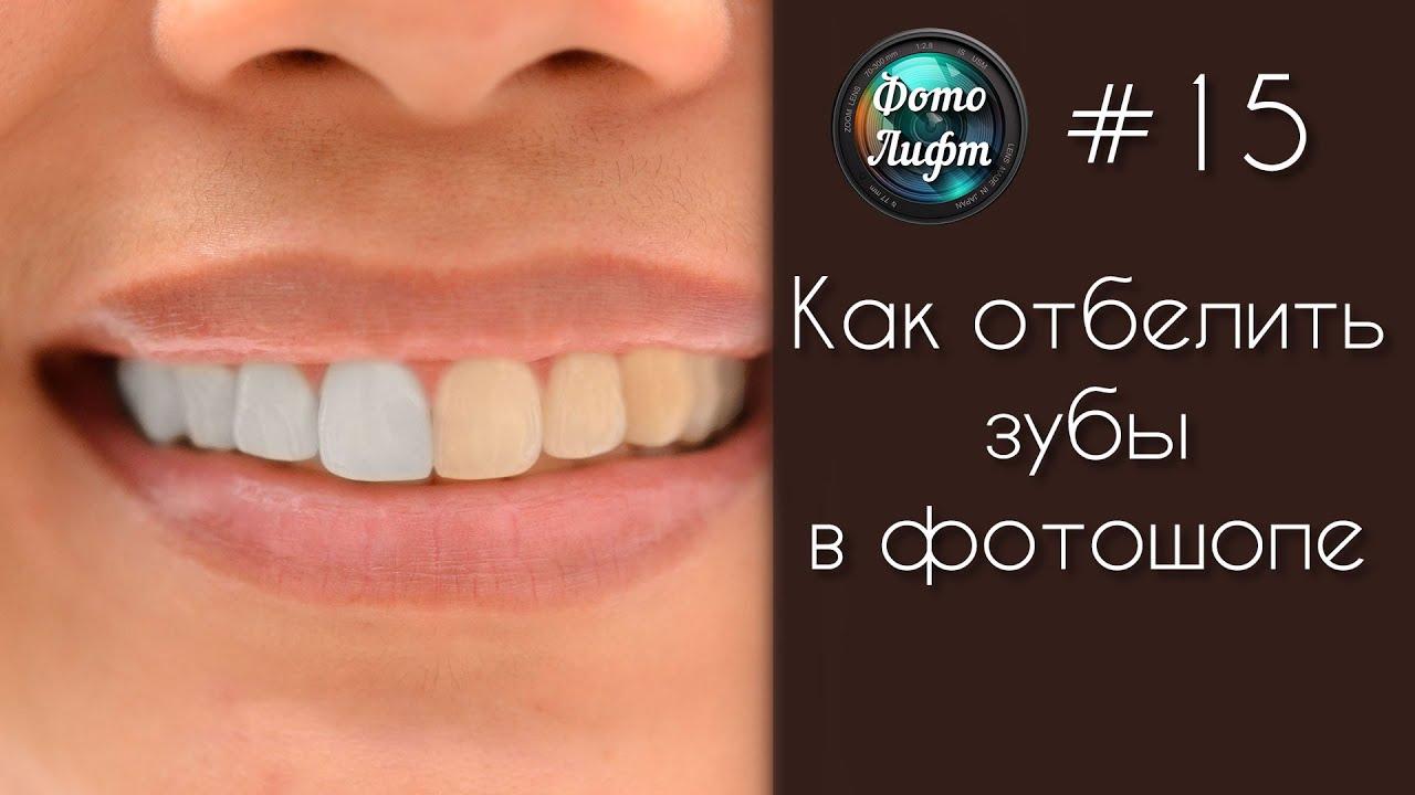 Как сделать зубы светлей 745
