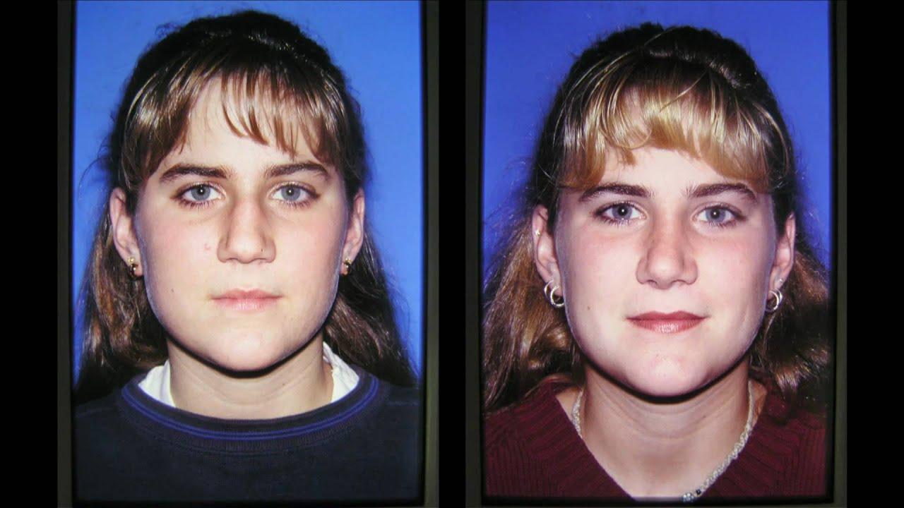 Clymer Facial Plastic Surgery 58
