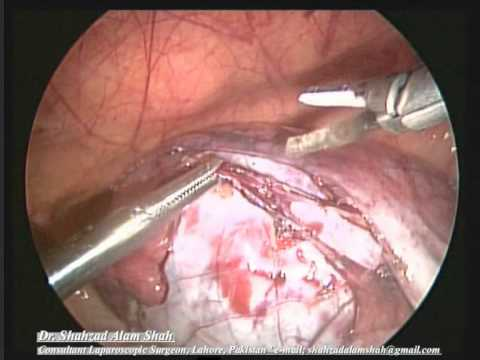 Lap Ovarian Cystectomy Hq.wmv