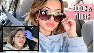 GETTING BOTOX AND FILLERS | the reason why i get them | VLOGMAS 11, 2018