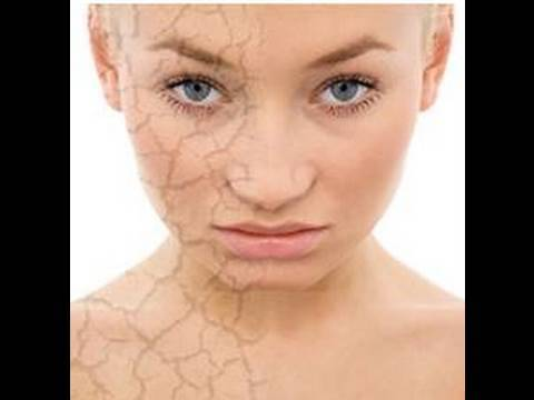 Macerados de aceites (caléndula y achiote) para pieles secas, psoriasis o quemaduras por el sol.
