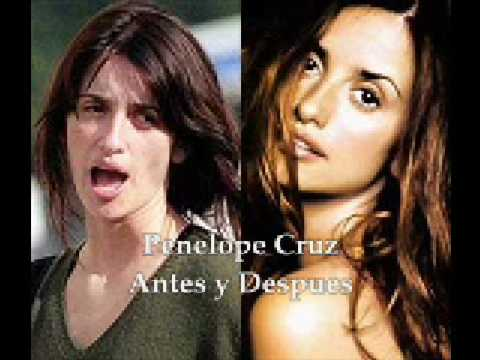 Antes y Despues de los famosos (Before After of the Celebs)
