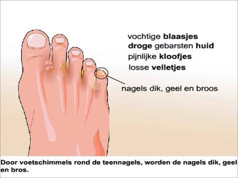 schimmelinfectie voeten azijn