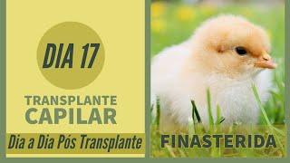 Finasterida - Dia 17 - Pós Transplante