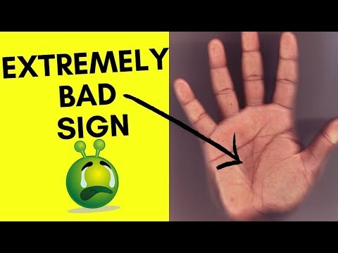 Extremely Bad And Unlucky Sign In Your Hands?-Islands In Palmistry