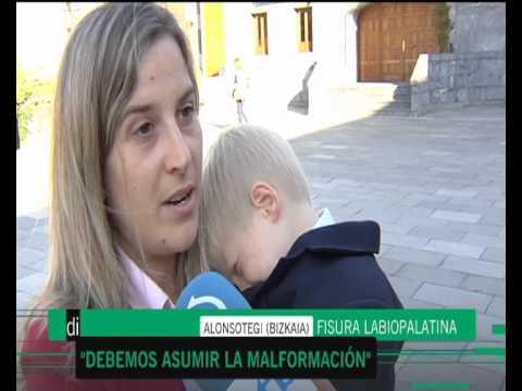 Raquel Sanz (ASPANIF) habla de la fisura labio-palatina (Euskadi Directo - ETB2)