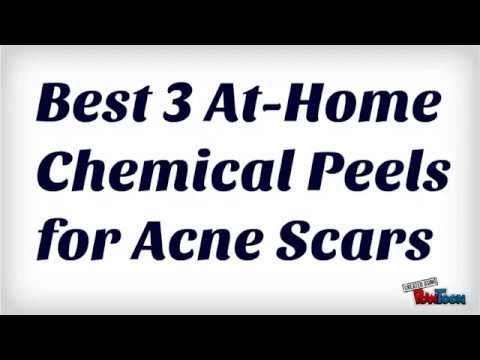 Best 3 At-Home Chemical Peels for Acne Scars