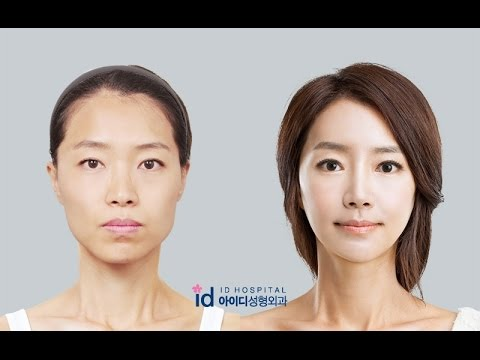 Korean Plastic Surgery Review  Amazing Makeover Show, Id Hospital Korea,  Let Me In Hospital