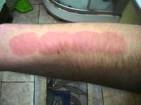 Salt And Ice Challenge Marks Salt And Ice Challenge