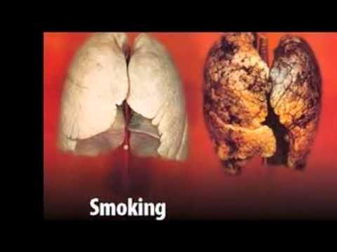 Tobacco Effects On The Body Mp4 Youtube