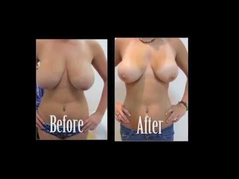 Breast Reduction Before & After and Testimonial