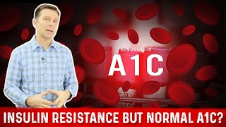 Why Do I have Insulin Resistance But Normal A1C?