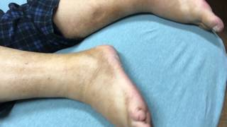 severe pitting edema TEASER video