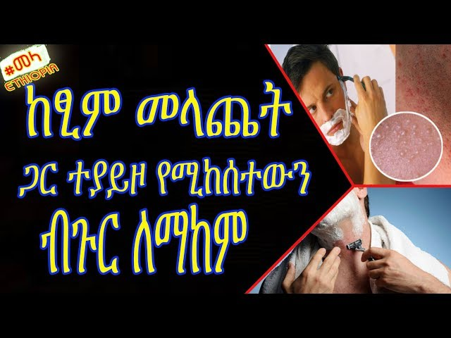 ETHIOPIA -how to get rid of Pimples after Shaving in Amharic