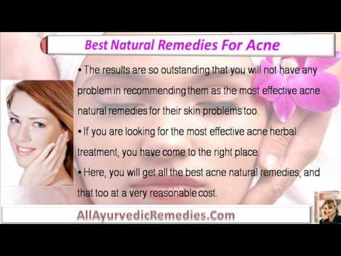 Acne Herbal Treatment, Best Natural Remedies