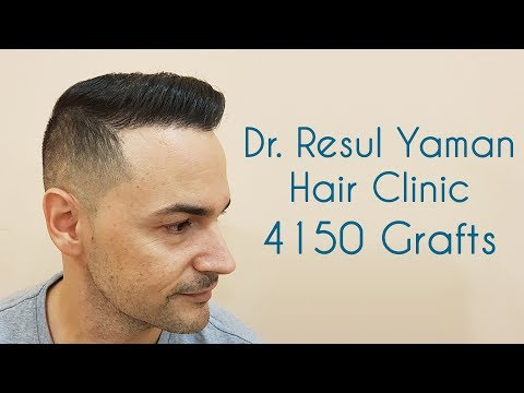 Dr Resul Yaman Hair Clinic - 4150 Grafts Result