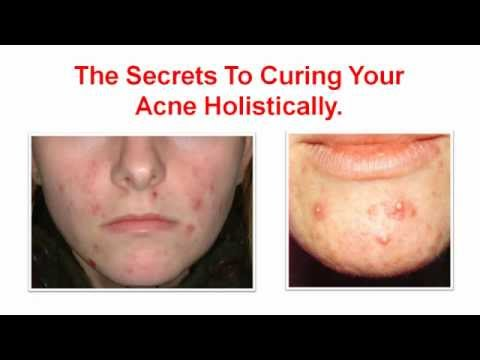 acne treatment reviews - adult acne treatment - acne treatments that work