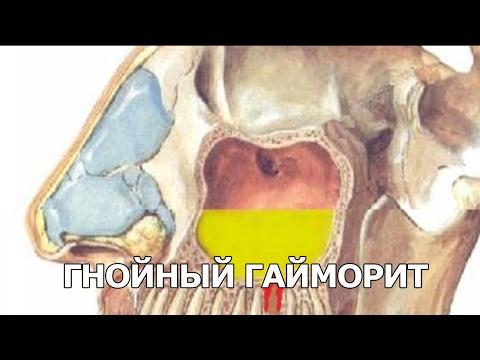 0 - Чим і як лікувати грибковий гайморит?