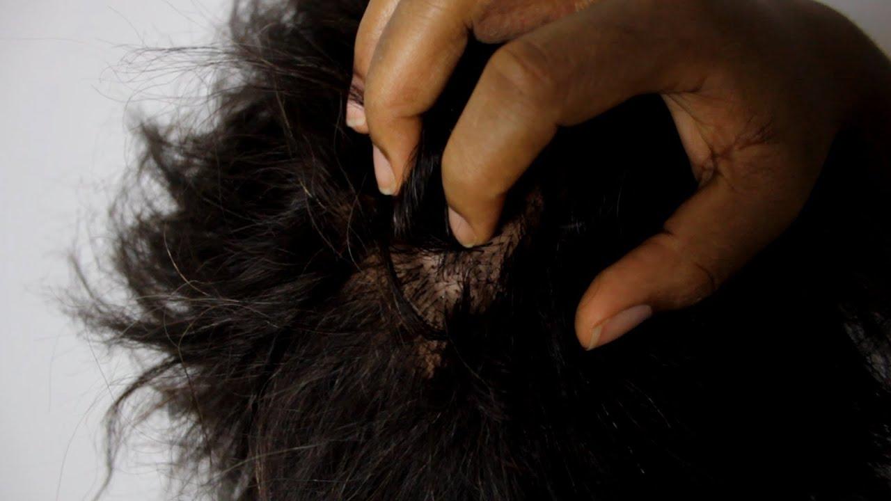 Почему зудит голова и выпадают волосы причины и лечение