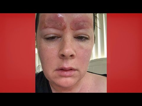 Could This Happen to You?: Microblading Gone Wrong   The Doctors