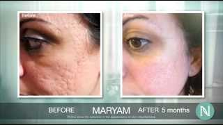 Nerium before and after photos - www.lookyoungerin10days.com