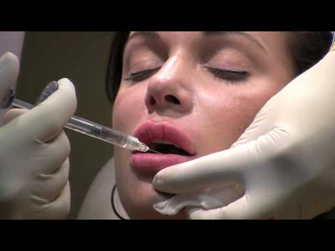 Lip Augmentation & Wrinkle Reduction using Juvederm Ultra by Chevy Chase Maryland Cosmetic Surgeon