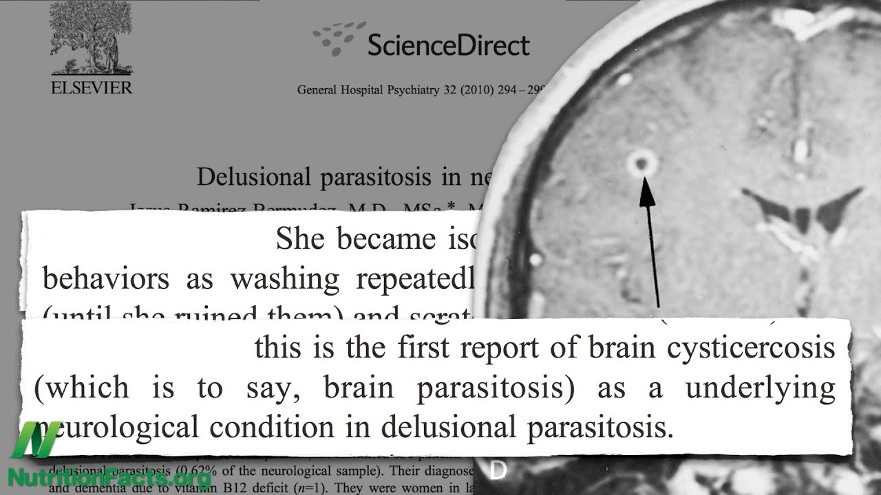 Not So Delusional Parasitosis