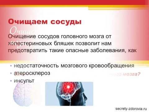 Как почистить сосуды головного мозга в домашних условиях
